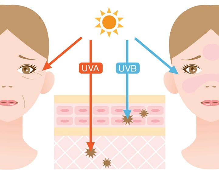 uv-radiation-injures-health