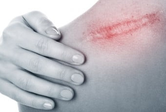 scars-keloid-scars-after-surgery
