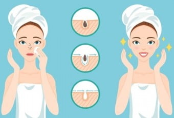 5-tips-to-get-rid-of-blackheads