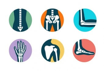 3-behavioral-sitting-standing-that-affects-bone-alignment-premature
