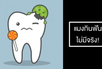 causes-of-caries-are-bacteria