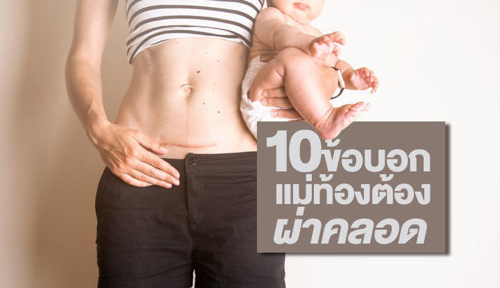 10-things-that-make-you-c-section