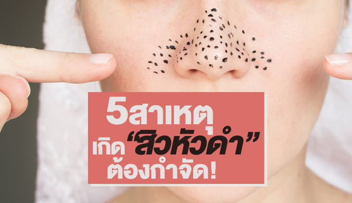 5-causes-blackheads-to-get-rid-of