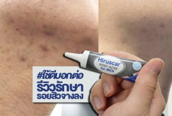 hiruscar-post-ance-for-men-bfat