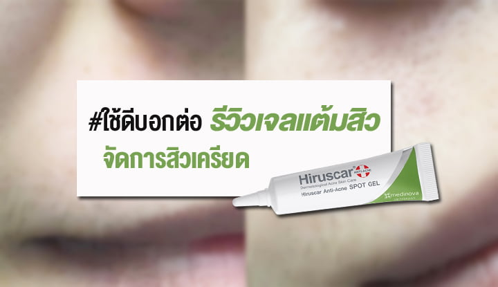 hiruscar-anti-acne-spot-gel1edit