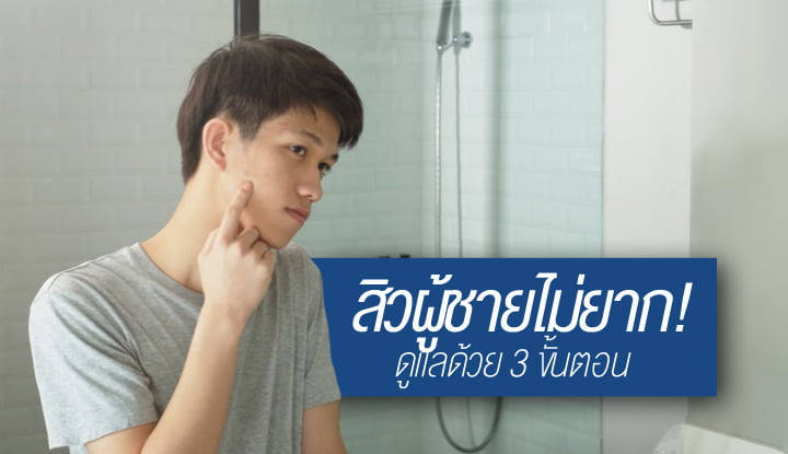 acne-care-for-men-is-not-difficult