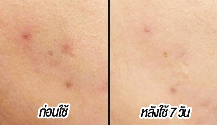 hiruscar-postacne-review-before-after
