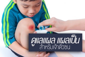 how-to-properly-care-for-wounds-and-prevent-scarring-for-children