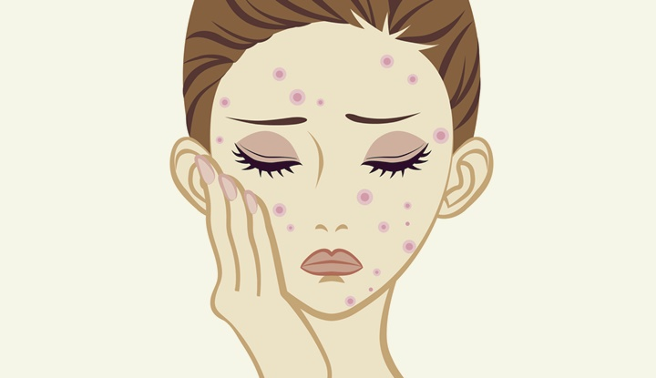 Acne - Skin care Trouble