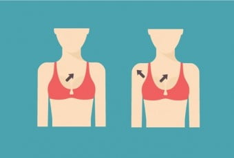 breast-surgery-causes-breast-cancer-or-not