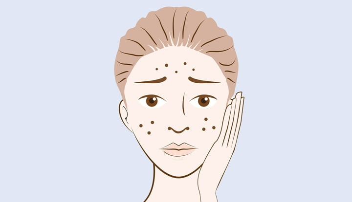 acne-with-6-tips-to-take-care-of-this
