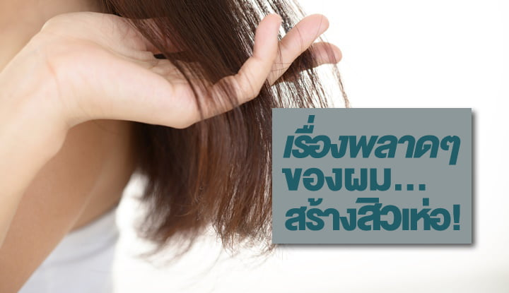 5-things-about-hair-to-avoid-with-acne