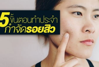 5-steps-to-a-successful-acne-treatment