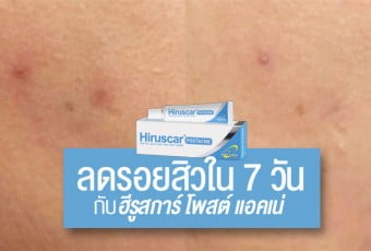 hiruscar-postacne-review-cover