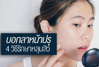 4-ways-to-treat-acne-holes